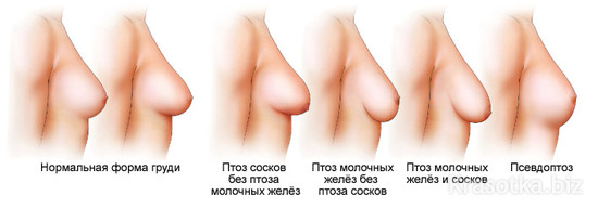 операция на груди подтяжка с липосакцией
